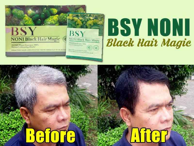 Efek Samping Shampo Noni Bsy